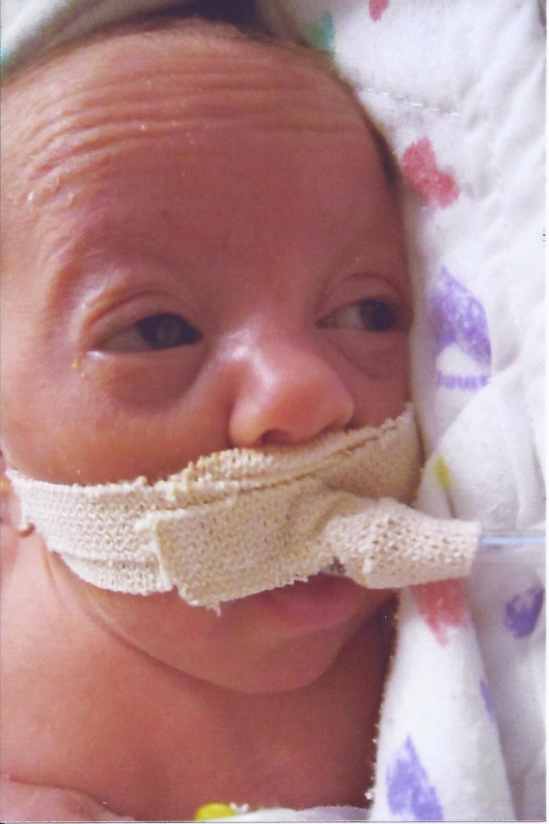 Briar, one of the Wagner triplets born at 24 weeks 6 days