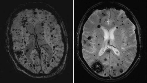 """This is my time bomb picture,"" said Dr. Leslie Morrison. ""This is the cavernous angioma (in the brain), and this is after its bled."""