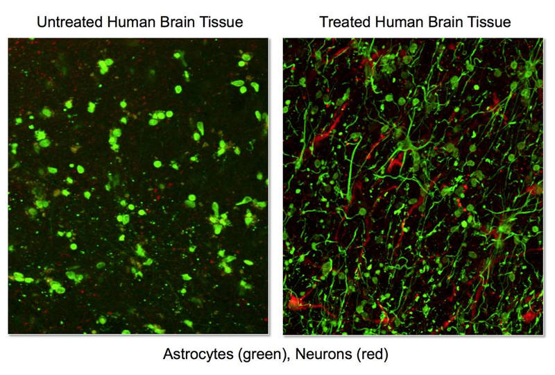 *Neurons are visible in red, astrocytes (caretaker cells) in green. The specimen on the right was placed in a solution with 2-methylthio-ADP, one of a class of compounds called purinergic receptor ligands. The specimen on the left was untreated.