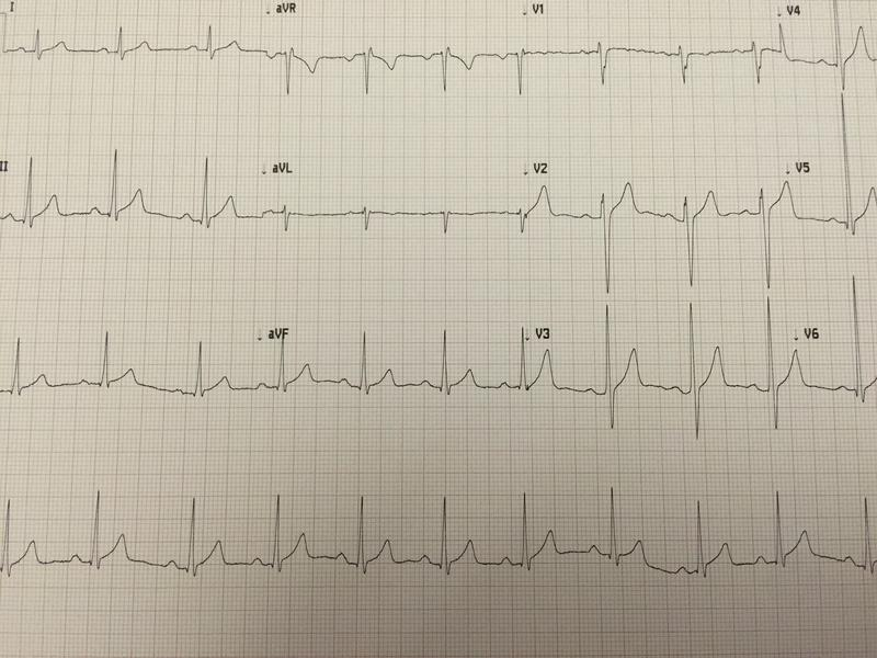 This is what an EKG printout looks like