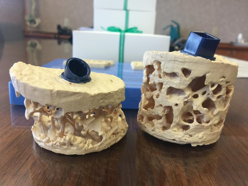 Osteoporotic bones often look like the model on the left. In diabetics, their bones can look normal like the model on the right. In actuality, though, they may be brittle.