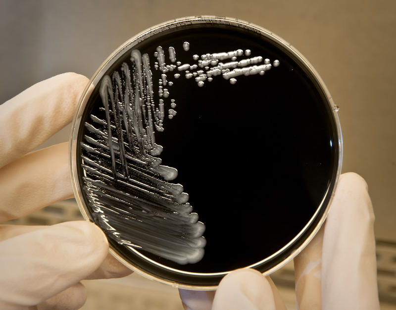 Legionella pneumophila, a bacterium that can cause Legionnaires' disease, growing on specialized microbiological media (BCYE).