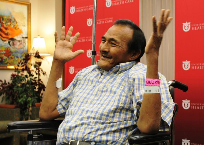 University of Utah Hospital patient Andres Galvan of West Jordan four days after a kidney transplant. (July 31, 2014)