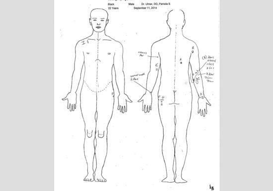 Medical assessment body diagram wiring diagram database saratoga springs kuer 90 1 rh kuer org braden skin assessment form skin assessment chart ccuart Choice Image