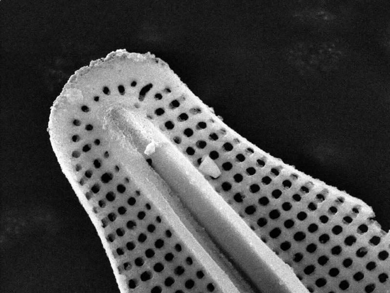Freshwater diatom seen under a scanning electron microscope.