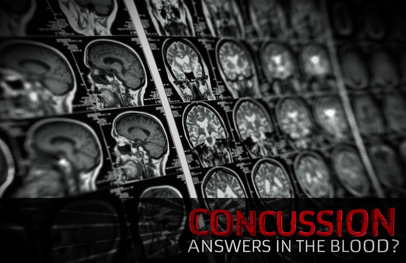 """Concussion: Answers in the Blood?"""
