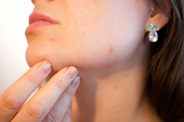 Pimples can appear anywhere on the body.