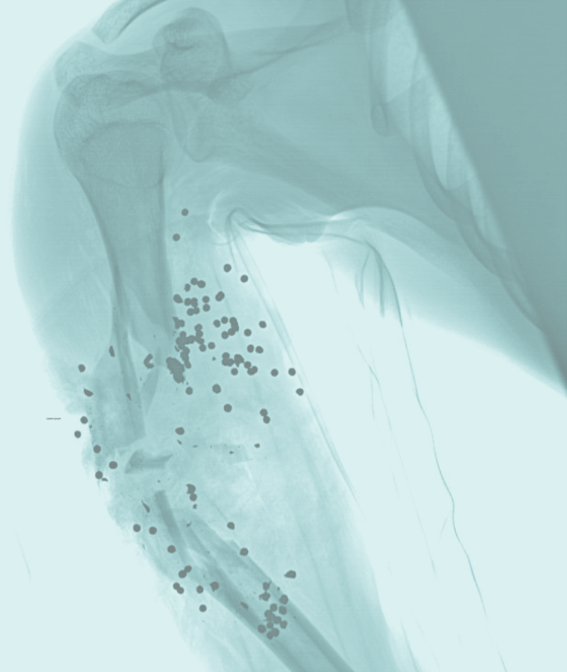 """An X-ray of a shotgun wound to the upper arm. Image: Case courtesy of Dr David Cuete, Radiopaedia.org, rID: 24457.  (From the Maxwell Museum's exhibit, """"Gun Violence: a Brief Cultural History"""")"""