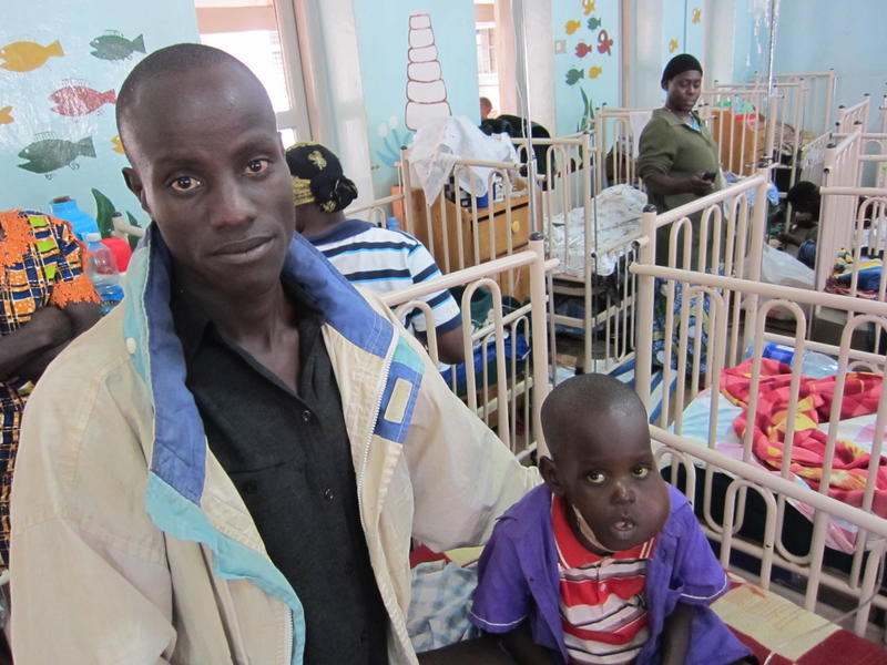 This child has Burkitt's lymphoma, a cancer that is common in Uganda. The cancer makes the jaws and bellies swell grotesquely.