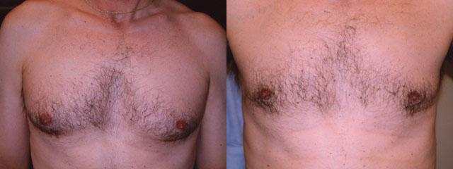 Gynecomastia surgery on a patient, before and after shot.