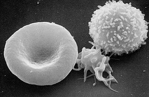 Scanning electron micrograph of a red blood cell (left), a platelet, and a T lymphocyte (T cell).