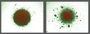 Left: Thousands of HIV-infected cells, after being exposed to normal, unedited T cells. Right: Thousands of HIV-infected cells after being exposed to edited T cells. The clumping in the right image indicates HIV positive cells are being killed.