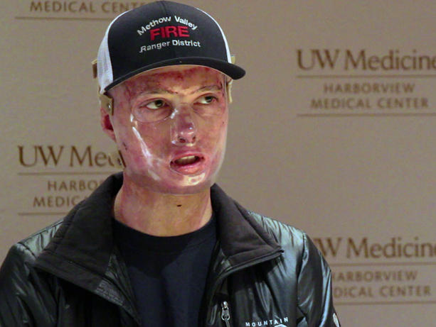 Daniel Lyon speaks at a news conference on Harborview Medical Center on Wednesday, the day he was released after more than four months in the hospital recovering from burns suffered in the Twisp River wildfire.