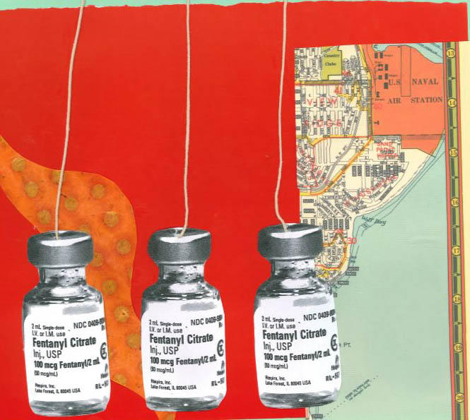 A national shortage of anesthesia and pain medications have put providers in a tough spot, including in obstetrics. Collage