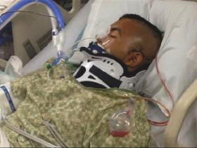 Noe Nino de Rivera was placed in a medically induced coma for 52 days after he was tased by a Bastrop County Sheriff's Deputy at Cedar Creek High School on Nov. 20, 2013. He is now recovering at a rehab center in the Hill Country.