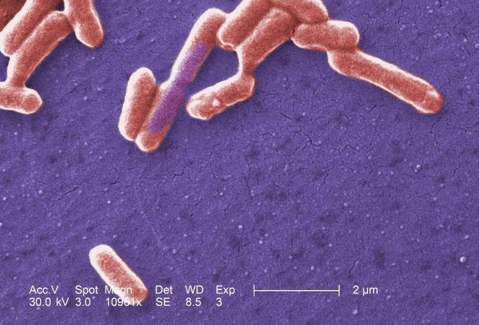 A dangerous strain of E. coli bacteria shown under an electron microscope