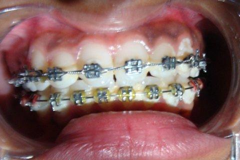 The state spent $184 million in 2010 on braces for kids under Medicaid.