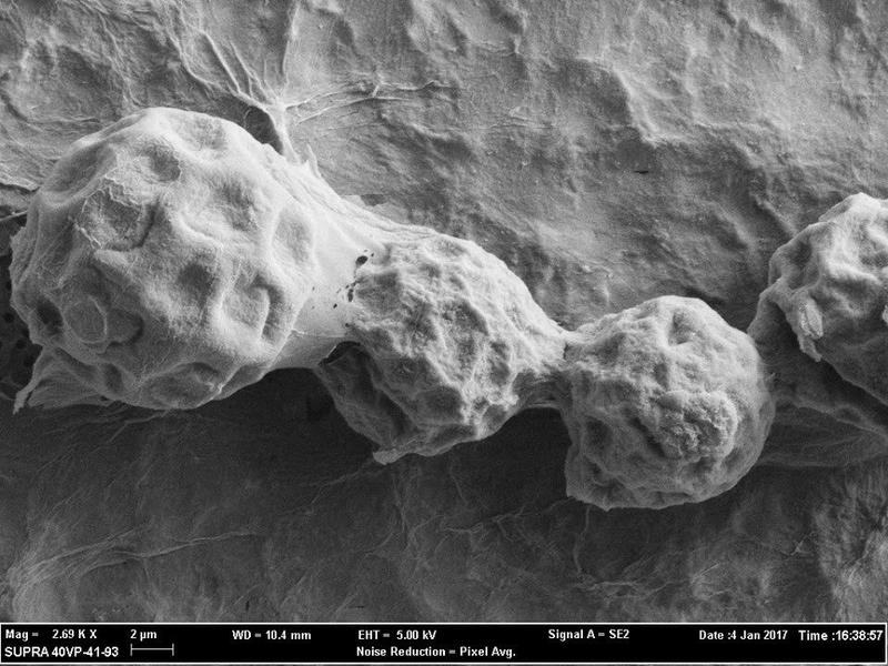 TGEN, a Phoenix-based lab, has captured detailed SEM images of the cocci fungus, which could help answer fundamental questions about valley fever.
