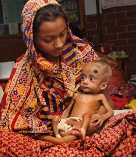 A Bangladeshi mother holds her malnourished child.