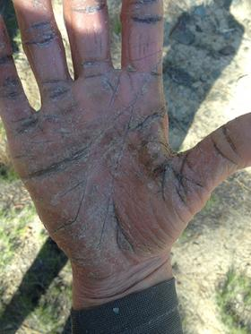 Ichthtyosis causes his hands to dry out, crack and flake.