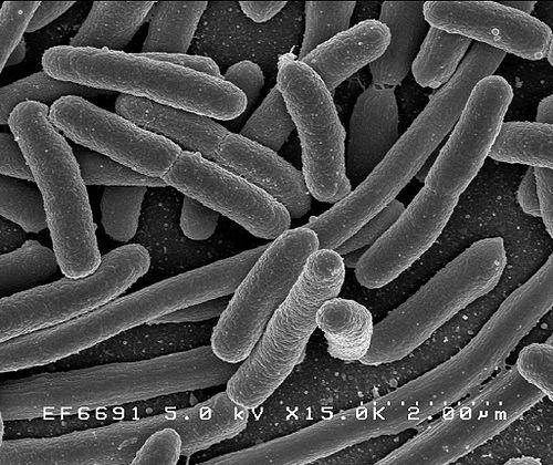 Researchers at Washington University School of Medicine in St. Louis were able to grow and manipulate individual collections of human intestinal microbes, like these E. coli, in the laboratory. (Wikimedia Commons/Rocky Mountain Laboratories/NIAID/NIH)