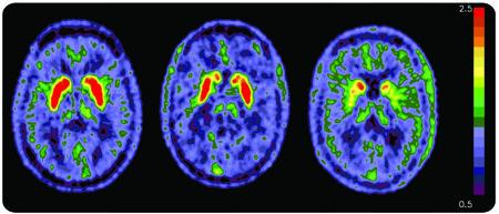 Brain scans from a control subject (left), a welder (center), and a subject with idiopathic Parkinson's disease (right), in a study by researchers at Washington University comparing brains of apparently healthy welders to those of Parkinson's patients.