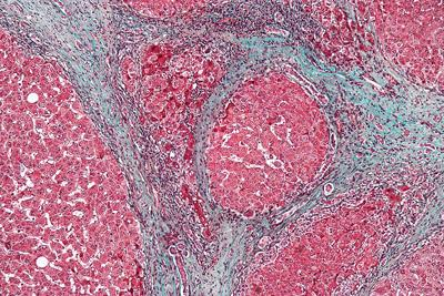 High magnification micrograph of a liver with cirrhosis. Cirrhosis is a condition caused by hepatitis C.