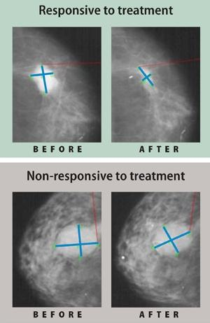Mammograms of estrogen-receptor positive breast tumors before and after 16 weeks of aromatase inhibitor therapy. The top images: a tumor that responded to the treatment and regressed. The lower images: a resistant tumor that stayed about the same size.