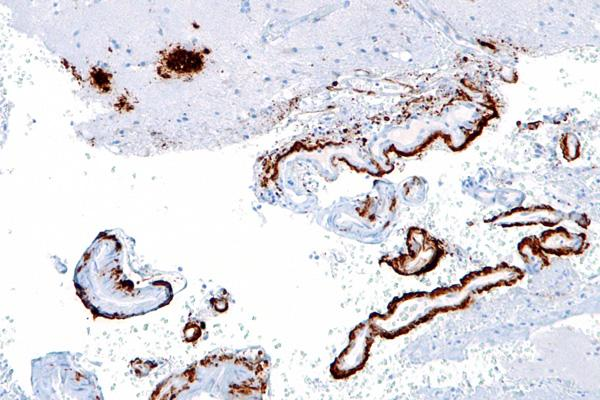Micrograph of amyloid beta plaques in the brain, as may be seen in Alzheimer disease.
