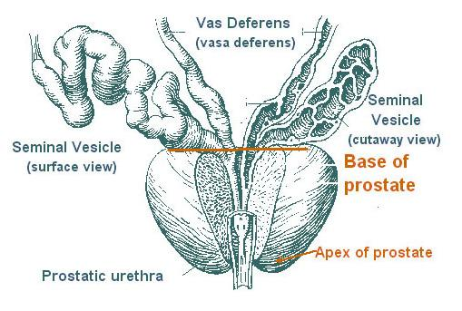 Diagram showing the anatomy of the prostate, a gland of the male reproductive system that produces fluid for semen.