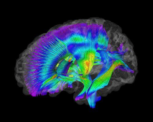 A composite image of white matter pathways in the brains of infants at risk for autism.
