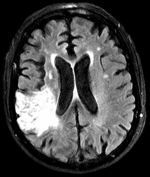 Early stroke treatment helps prevent or reduce brain damage, which appears as a white region on this MRI scan.
