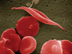 Sickle cell disease (SCD) is a genetic blood disorder that alters red blood cells. A defect in hemoglobin (a protein that helps the cells carry oxygen through the body) causes red blood cells to become rigid and take on a crescent (sickle) shape.
