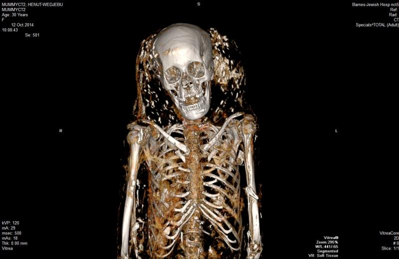 This CT scan of the mummy Henut-Wedjebu, an upper class Egyptian woman who lived about 3,400 years ago, shows small shiny objects that appear to float around her head. These could be glass beads, embedded in a wig or shroud.