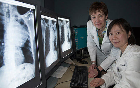 Researchers Laura Jean Bierut, MD (left), and Li-Shiun Chen, MD, examine X-rays of a patient with lung cancer.