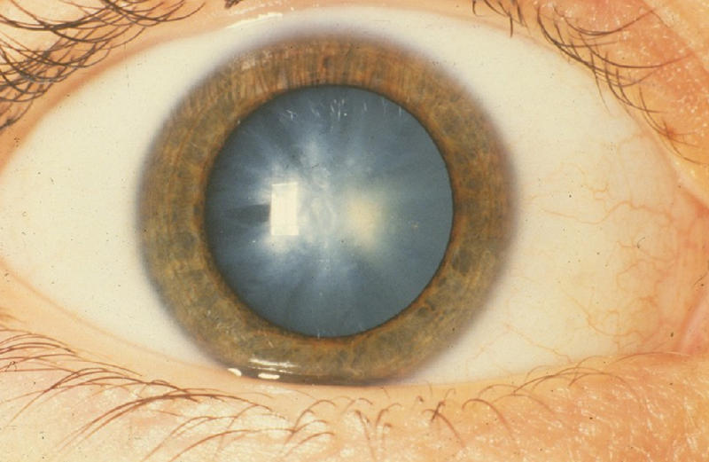 Cataracts are the leading cause of blindness worldwide.