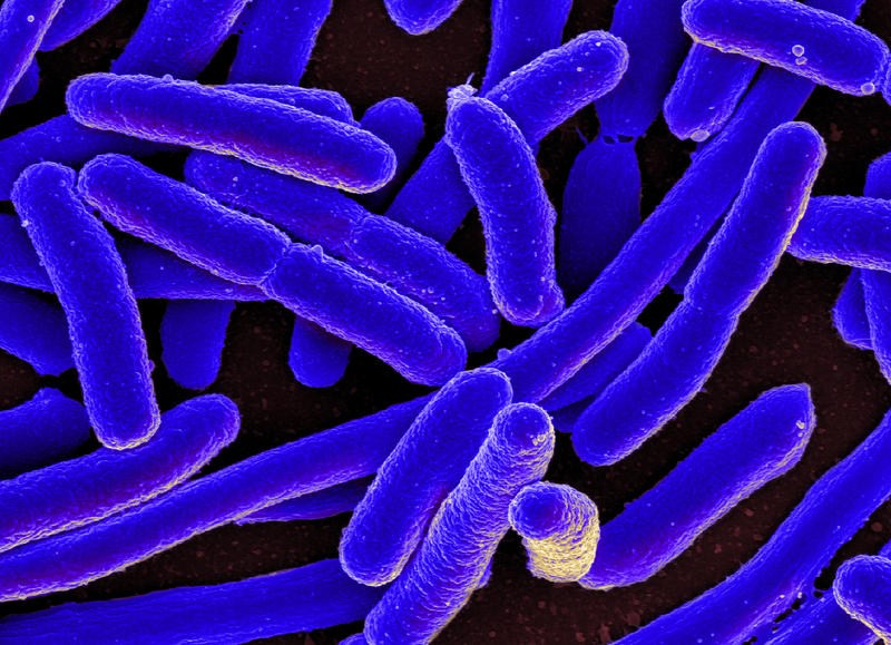 Engineers at Washington University have found a way to make biofuel from e-coli bacteria.