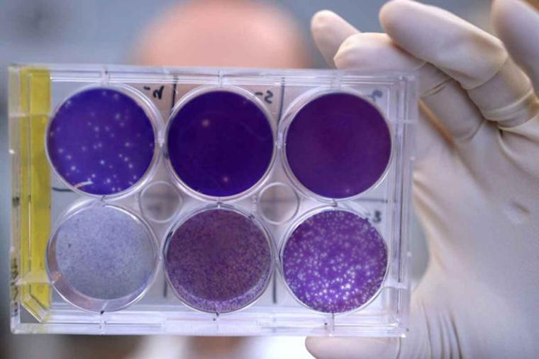 A researcher holds a tray of Zika virus growing in cells at Washington University School of Medicine in St. Louis.