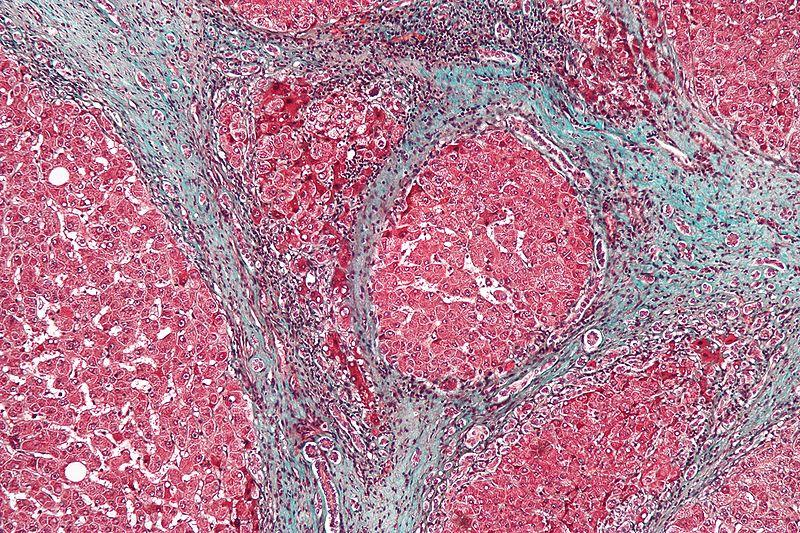 High magnification micrograph of a liver with cirrhosis, a complication of hepatitis C.