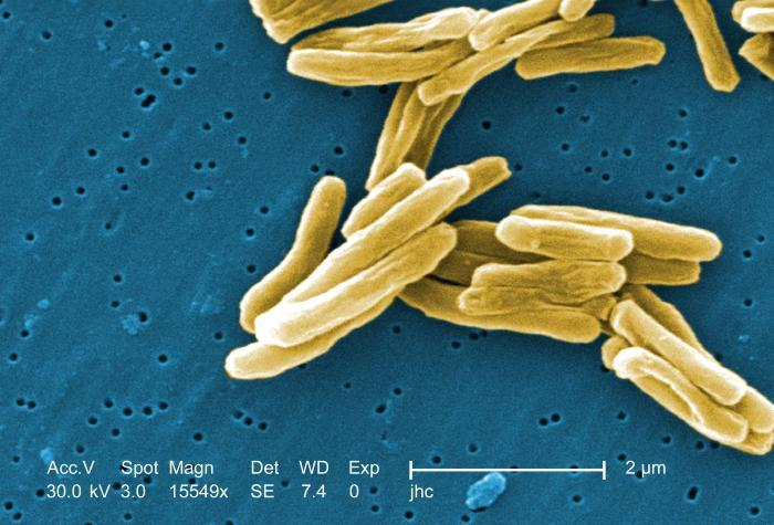Tuberculosis bacteria, shown here under a high-powered microscope, become active, and begin to multiply, if the immune system can't stop them from growing. The bacteria attack the body and destroy tissue.