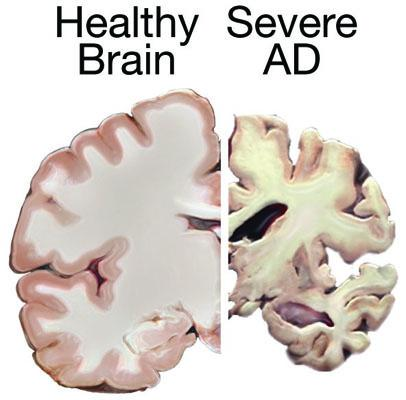 This image from the National Institute on Aging shows the difference between the tissue structure of a healthy brain (at left) and a brain severely affected by Alzheimer's disease.