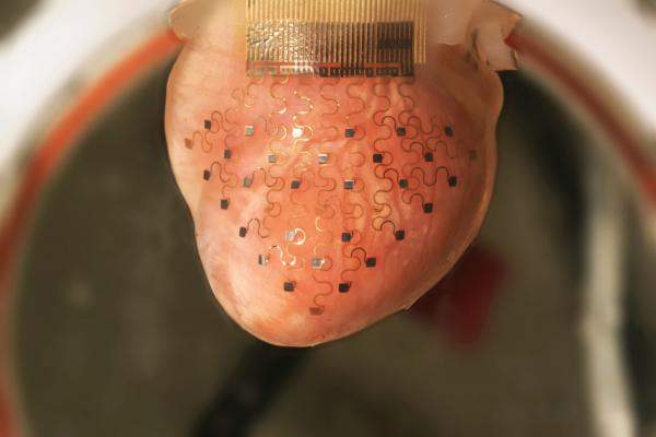 This photo shows the new cardiac device ― a thin, elastic membrane ― fitted over a rabbit's heart. The membrane is imprinted with a network of electrodes that can monitor cardiac function and deliver an electrical impulse to correct an erratic heartbeat.