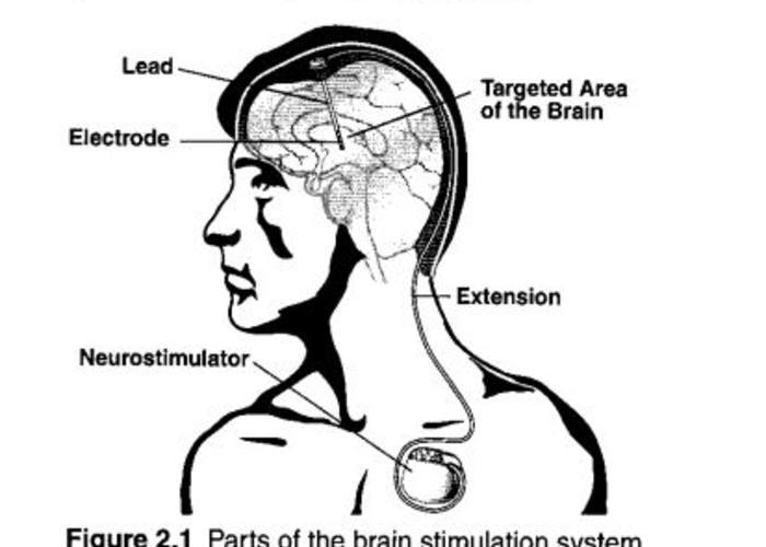 Nootropics cognitive enhancers image 3