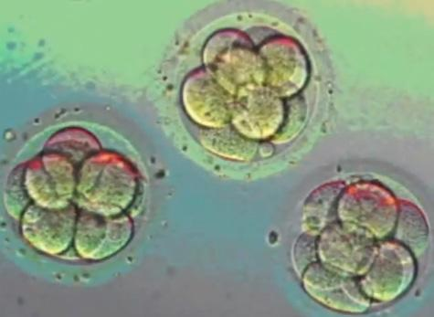 Cells multiplying after in-vitro fertilization.