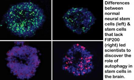 Autophagy at work, clearing out garbage within the cells, and keeping them in their stem-cell state