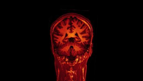 Image from an MRI brain scan video.