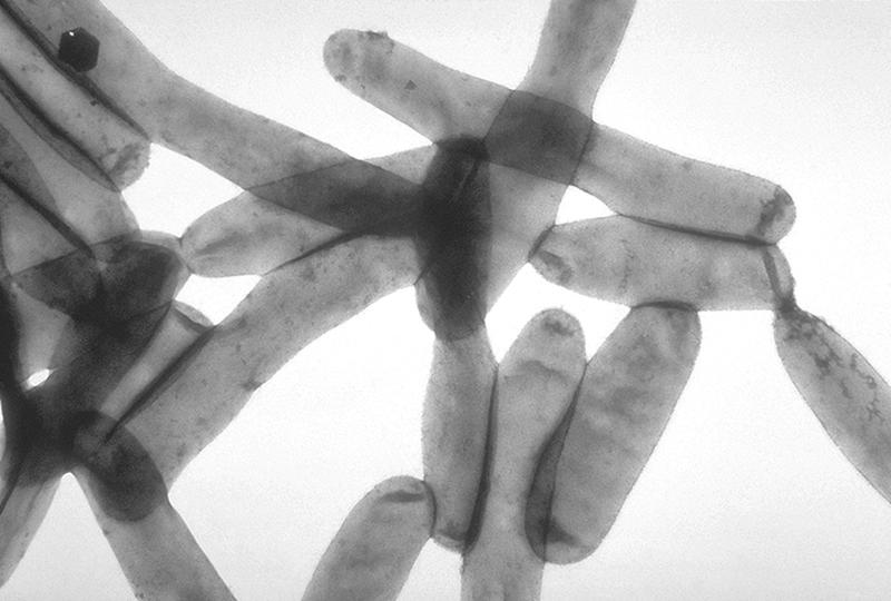 black and white bacteria under microscope