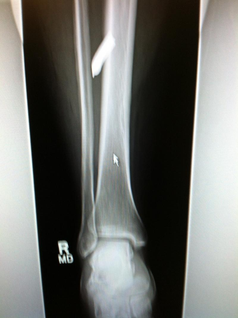 The X-ray of Karen Brassard's leg, where the shrapnel went in. It's visible at the top of the image.