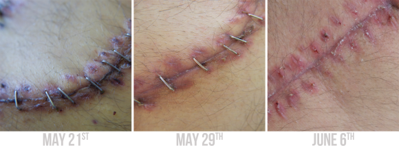 After three major abdominal surgeries, it is surprising how quickly the scar begins to heal.