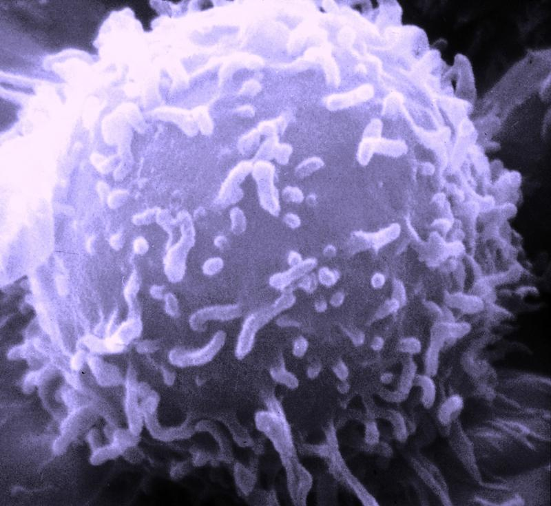 Scanning electron microscope image of human lymphocyte